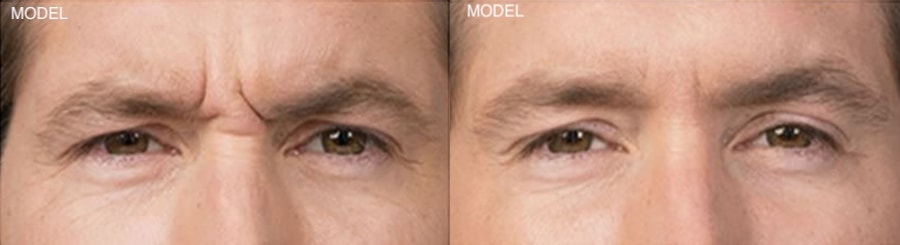 Patient 1 Before and After Botox Front View