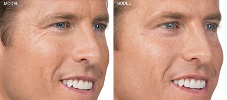 Patient 1 Before and After Botox Right Oblique View