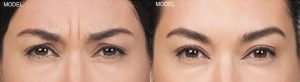 Botox Walnut Creek Patient 3