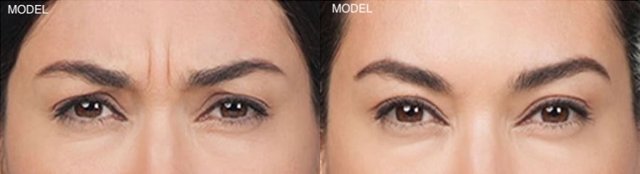 Patient 3 Before and After Botox Front View