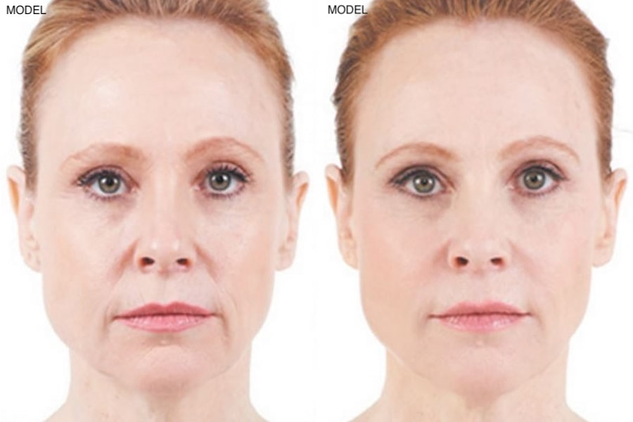 Patient 1 Juvederm Before and After Front View