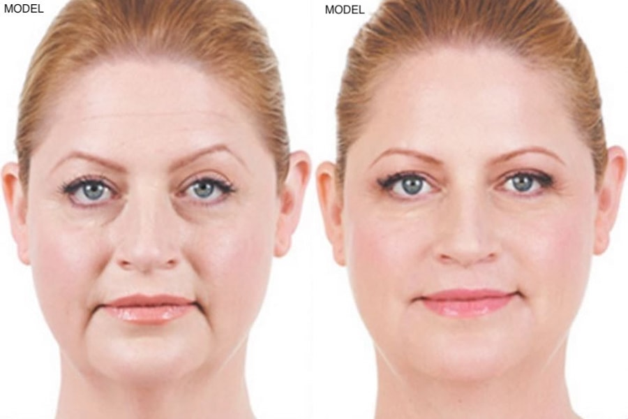 Patient 2 Juvederm Before and After Front View