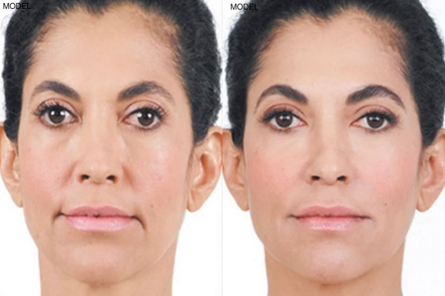 Patient 3 Juvederm Before and After Front View