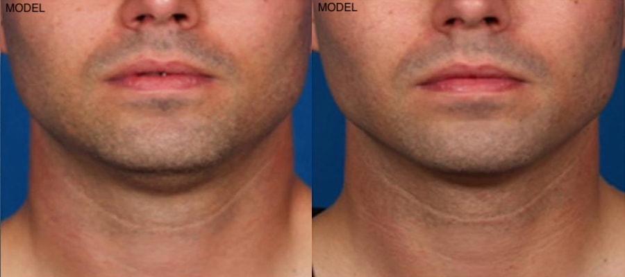 Patient 1 Kybella Before and After Front View