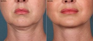 Kybella Walnut Creek Patient 2