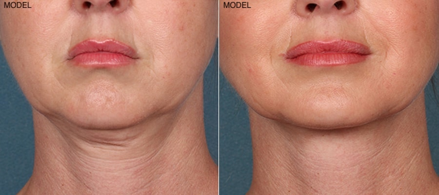 Patient 2 Kybella Before and After Front View