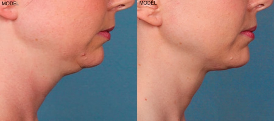 Patient 3 Kybella Before and After Right Side View