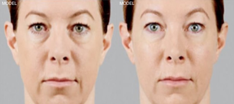 Patient 1 Juvederm Voluma Before and After Front View