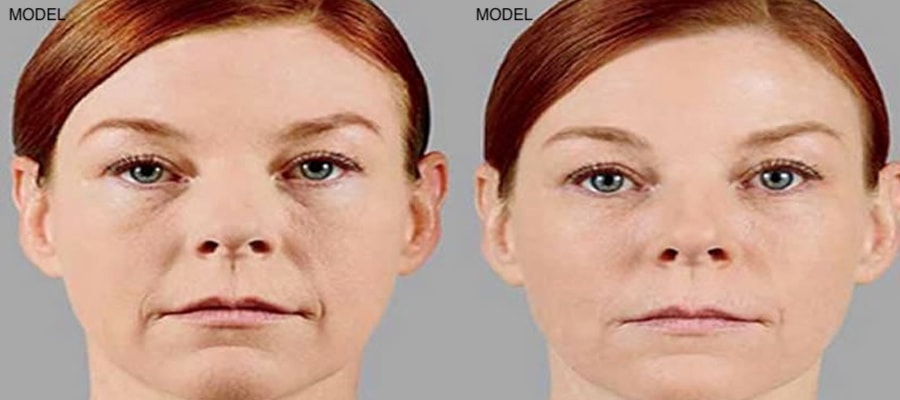 Patient 2 Juvederm Voluma Before and After Front View