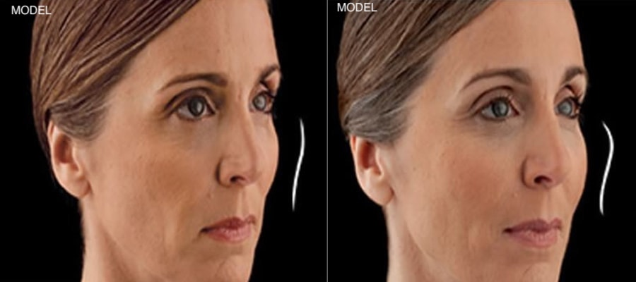 Patient 3 Juvederm Voluma Before and After Right Oblique View