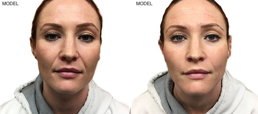 Patient 7 Juvederm Voluma Before and After Nasolabial