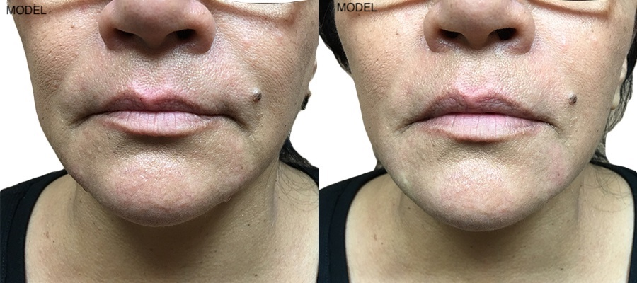 Patient 6 Juvederm Voluma Before and After Nasolabial