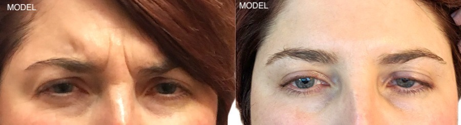 Patient 4 Before and After Botox Front View 1