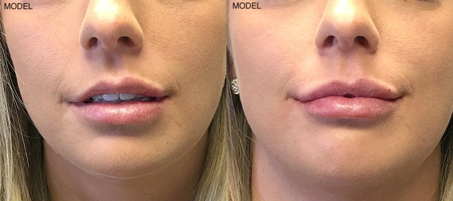 Patient 4 Juvederm Before and After Front View