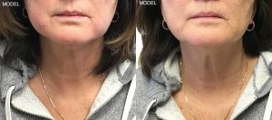Patient 4 Kybella Before and After Front View