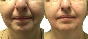 Patient 5 Juvederm Voluma Before and After Nasolabial