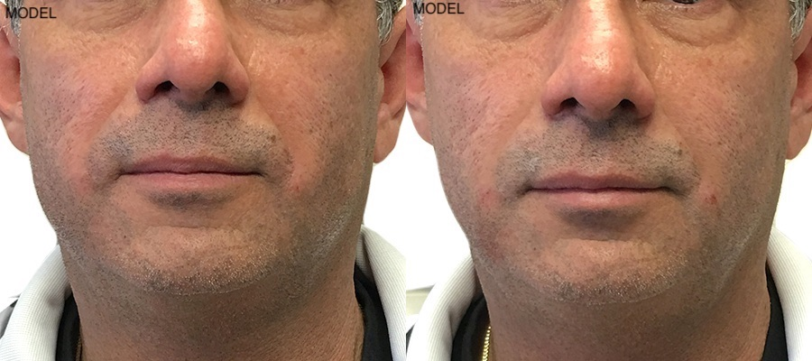 Patient 4 Juvederm Voluma Before and After Nasolabial