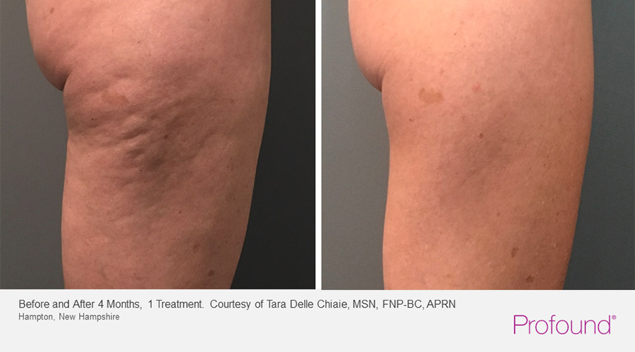 christopher-manios-palo-alto-profound-cellulite-treatments-1-1