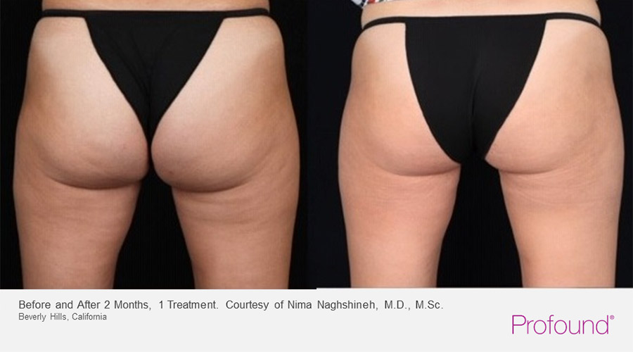 christopher-manios-palo-alto-profound-cellulite-treatments-3-1