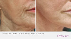 christopher-manios-palo-alto-profound-jaw-treatments-2-1