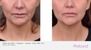 christopher-manios-walnut-creek-profound-jaw-treatments-11-1