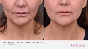christopher-manios-walnut-creek-profound-jaw-treatments-9-1