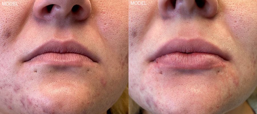 christopher-manios-walnut-creek-juvederm-patient-4-1